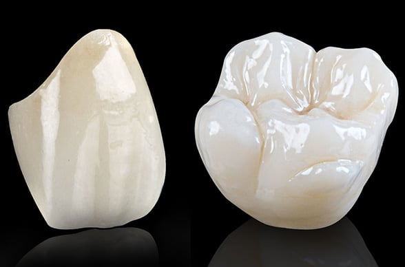 Corone dentali Croazia dentisti