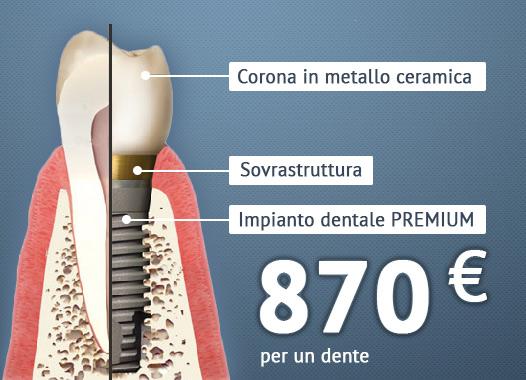 impianto dentale completo