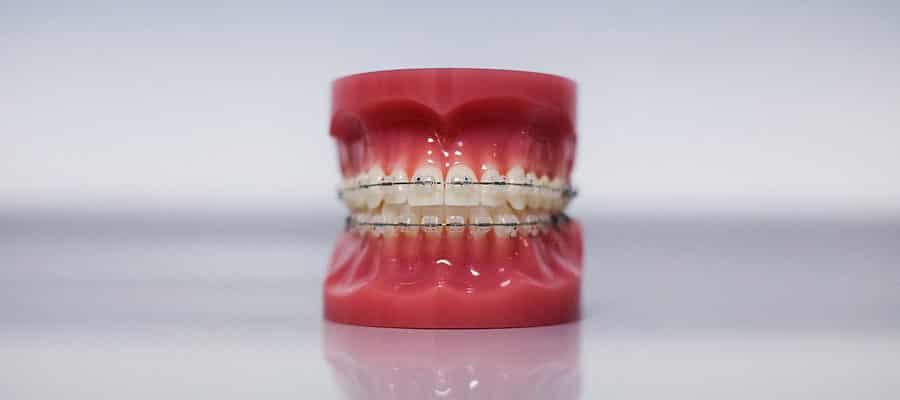 ortodonzia croazia