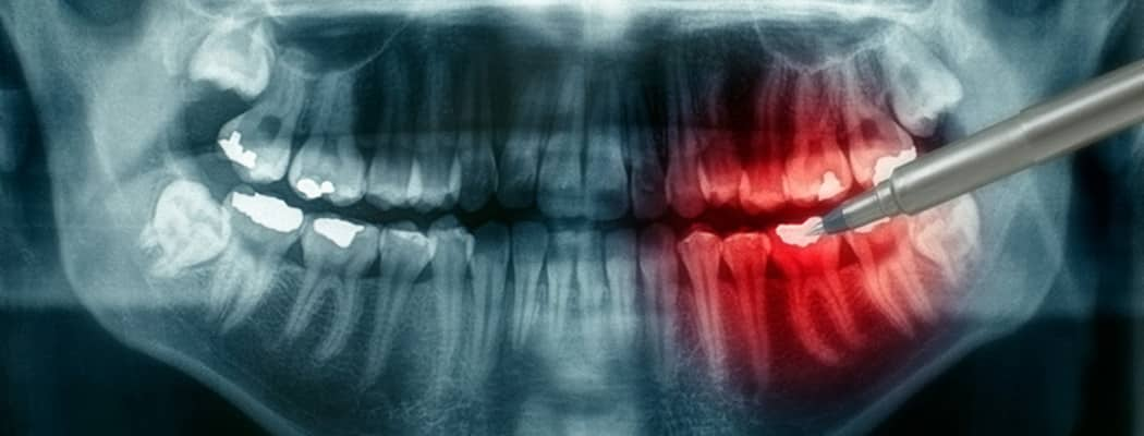 panoramica dentale croazia gratuito