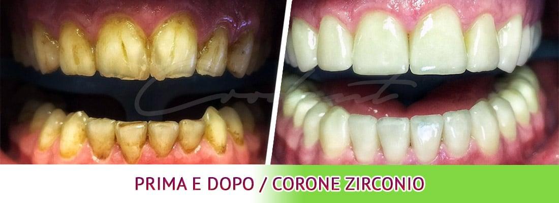 Prima e dopo dentale corone Croazia dentisti