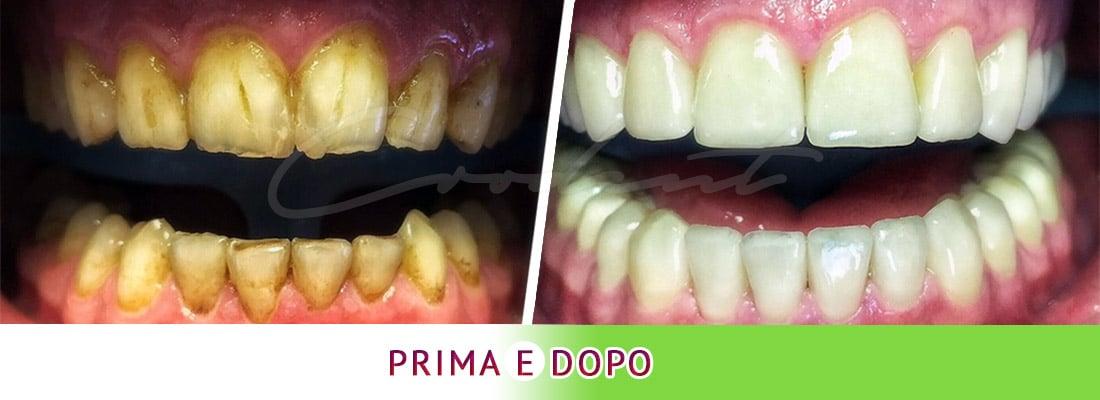 Corone zirconio sui denti naturali Croazia