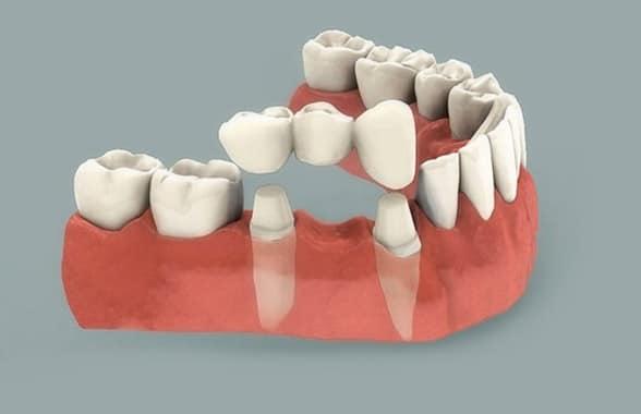 Ponte dentale fisso Croazia